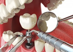 3D Printing Technology Leading to Major Improvements Within the Dental Industry