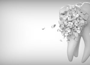 How 3D Printers Are Transforming The Dental Industry