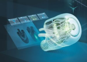 Siemens connects healthcare providers and medical designers to produce components through additive manufacturing